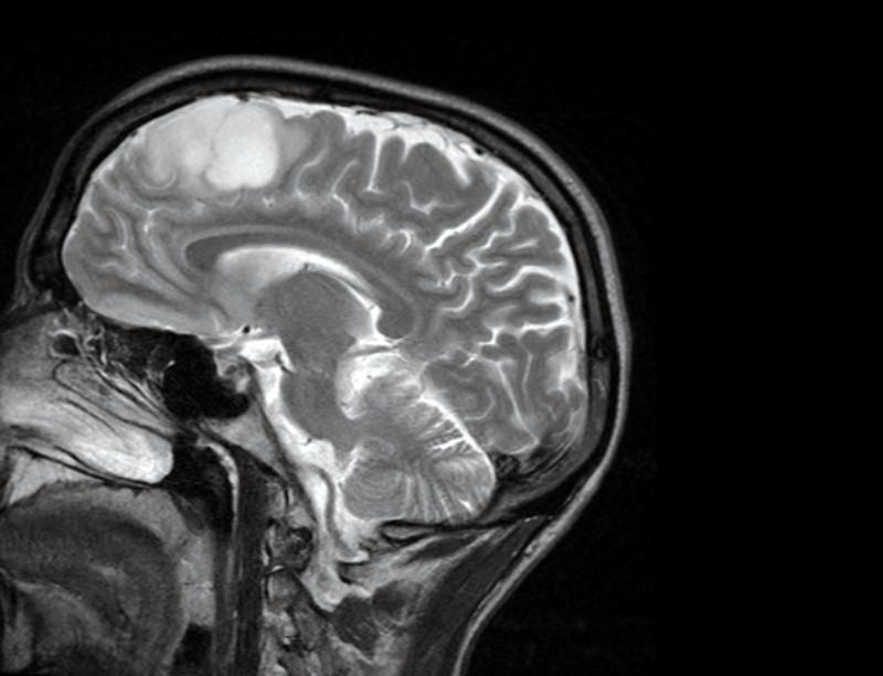 Hjärntumör - Bild: Stuart Farrimond