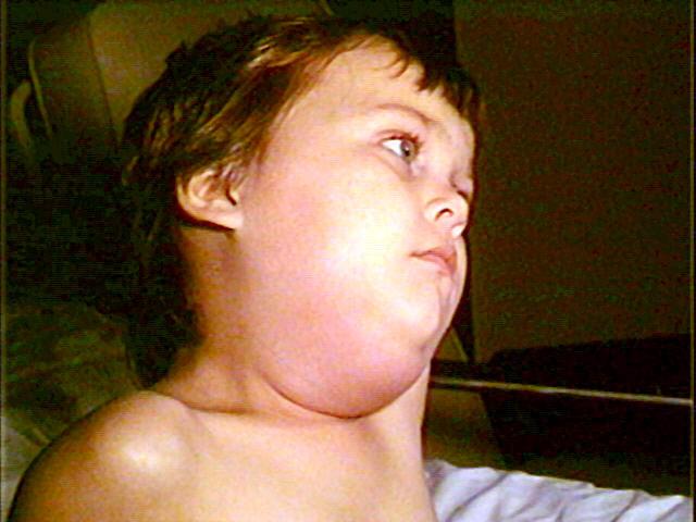 Påssjuka (mumps) - Foto: Barbara Rice