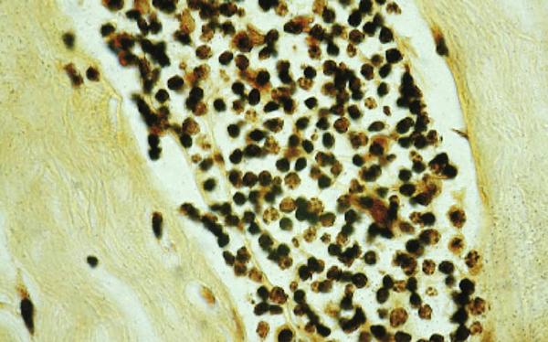 Bröstcancertumör med sporsäckssvampar - Foto från Erik Enby