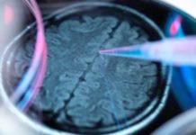 Brain alzheimer - Bild: Corbis