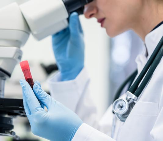 Blod undersöks i laboratorium - Temafoto från Crestock.com