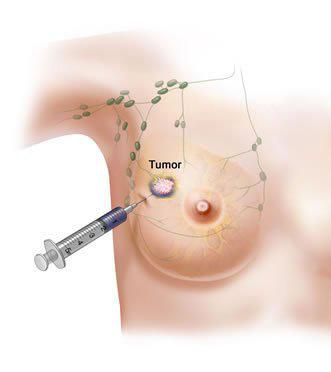 Biopsi - Källa: Mastopatiya.su