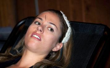 Akupunktur - Foto: JD Lasica, Flickr.com, CC BY 2.0