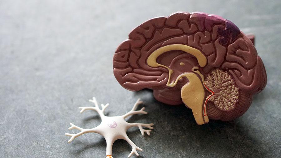 Modell av hjärna. Foto: Bina Weermeijer. Licens: Unsplash.com
