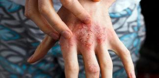 Inflammation, psoriasis-Foto: Adobestock.com