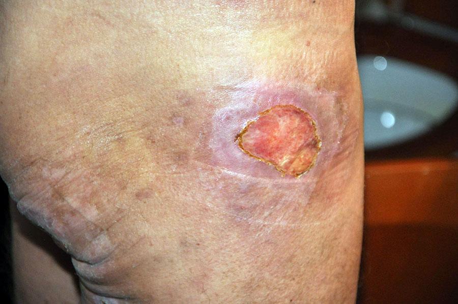 Cancer på benet. Foto: Terje Toftenes